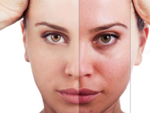 5 cosas que haces a diario y deterioran tu rostro