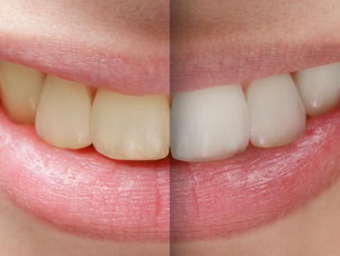 Aprende a blanquear tus dientes usando cáscara de plátano