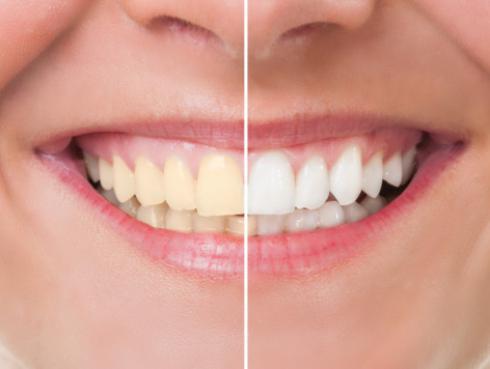 Cáscaras de naranja para blanquear los dientes