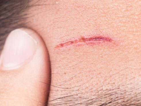 ¡Elimina las cicatrices con este TIP secreto!