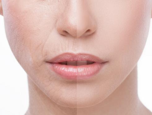 Mascarilla casera para aumentar el colágeno y evitar arrugas