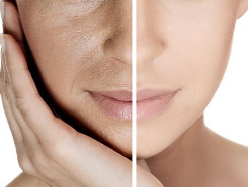 Mascarilla de perejil para eliminar las manchas en el rostro