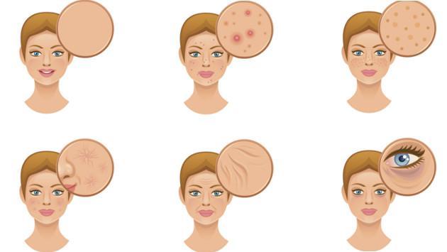 4 alimentos que dañan tu piel gravemente
