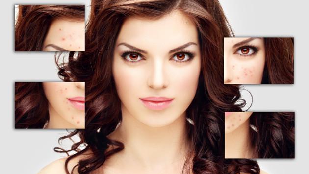 Entérate por qué tienes acné en ciertas zonas del rostro