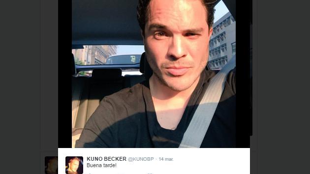 ¡Pobre Kuno Becker! Todo sobre la pérdida de la visión del actor