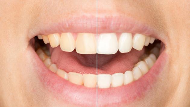 4 trucos para blanquear tus dientes