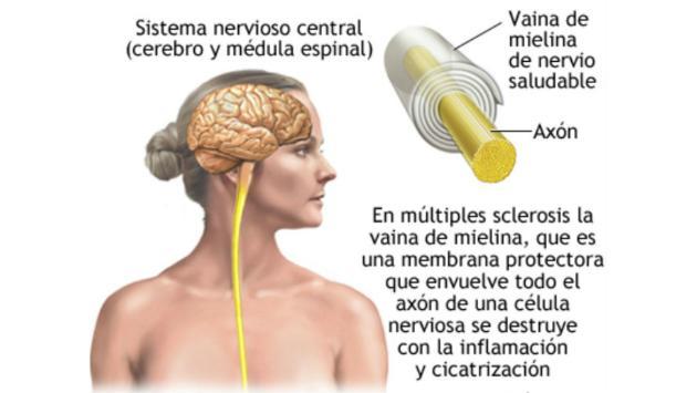 Esclerosis múltiple, una enfermedad que ataca sobre todo a mujeres y que tú puedes prevenir con estos consejos
