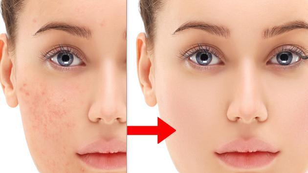 ¡Disminuye las manchas y arrugas del rostro con este tip!