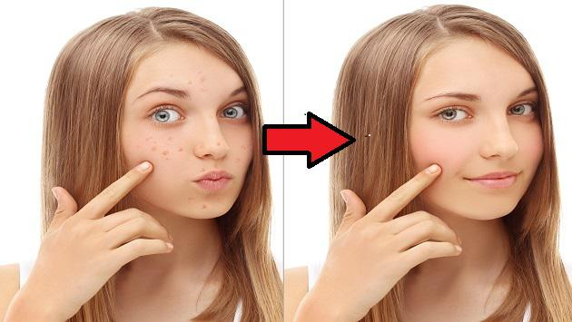 Elimina el acné con este tip casero
