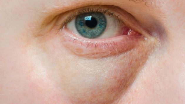 ¡Elimina las bolsas de ojos con estos tips caseros!