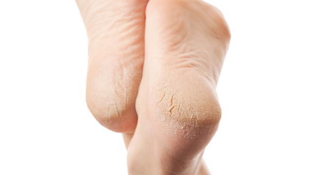 Elimina las durezas y callosidades de tus pies usando aspirina