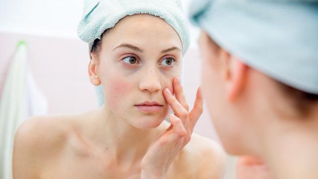 ¡Elimina las ojeras con perejil en solo una semana!