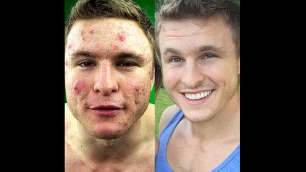 Este fisicoculturista halló la forma de eliminar el acné y se volvió viral en Instagram