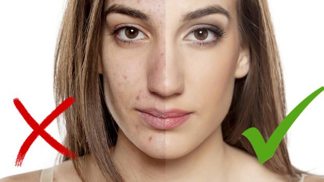 Jugo para prevenir y combatir el acné