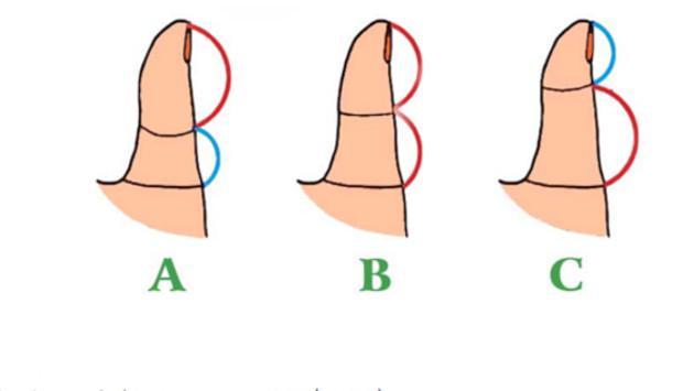 ¡La forma de tu pulgar revela rasgos de tu personalidad! ¡Descúbrelo aquí!