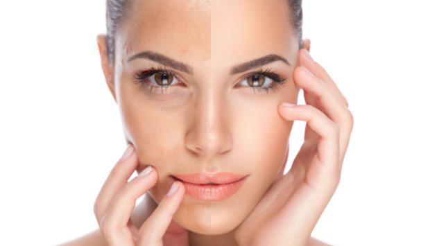 ¡Luce la piel de tu rostro libre de impurezas y más clara con este tip!