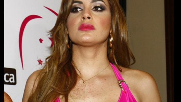 Milett Figueroa, candidata al Miss Perú Universo sufre grave cuadro de alergia