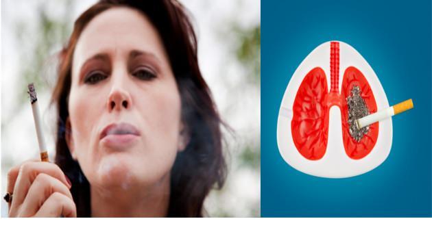 Mujeres pueden recuperarse del cáncer del pulmón más rápido que los varones