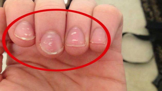 ¿Por qué tenemos manchas blancas uñas?