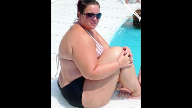 Pesaba 146 kilos y llegó a romper una silla, pero ahora luce así [FOTOS]