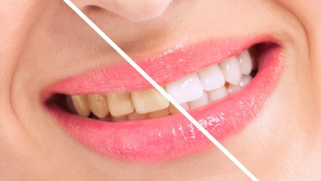 Truco para blanquear tus dientes usando aluminio