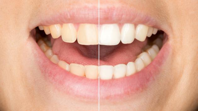 Trucos para blanquear tus dientes en casa