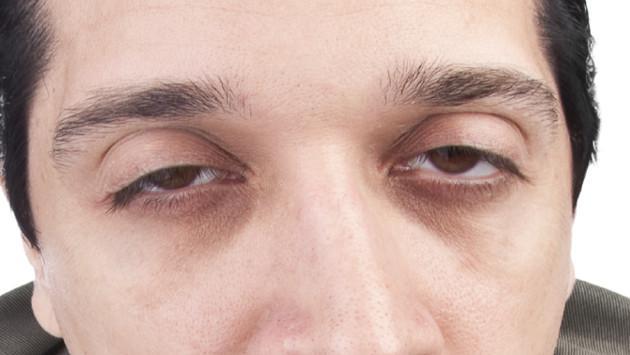 La atutía de las ojeras
