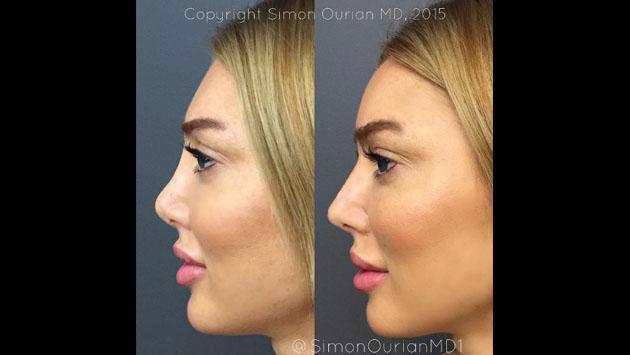 Un método que cambia la forma de la nariz en solo 5 minutos [VIDEO]