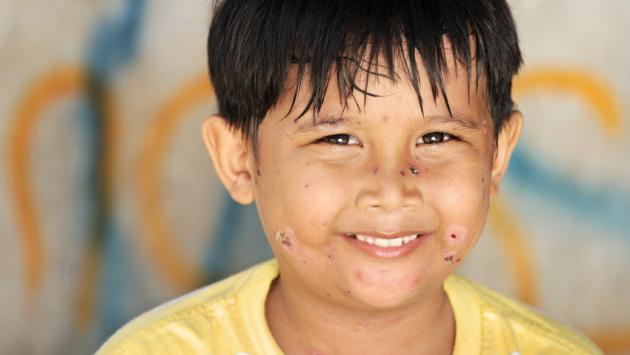 Vacuna contra la varicela debe ser aplicada en niños mayores de un año