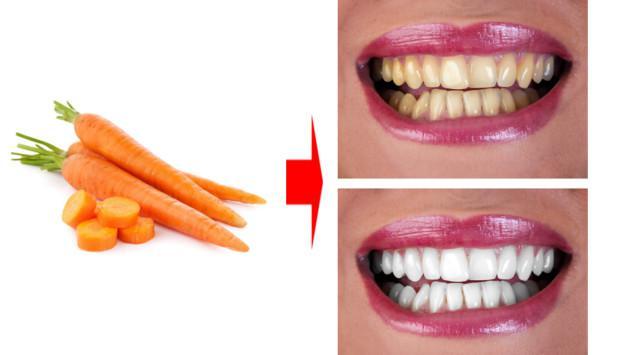Zanahoria para prevenir la caries y mantener los dientes sanos