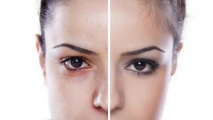 5 alimentos para combatir el acné