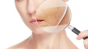 Loción casera de perejil para blanquear la piel, eliminar las pecas y manchas del rostro