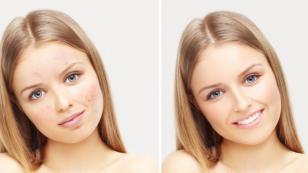 Mascarilla casera para eliminar las manchitas de la piel