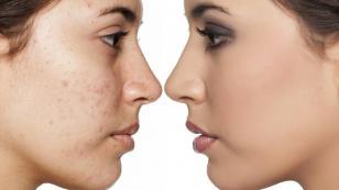 Mascarilla para eliminar las manchas y cicatrices del acné