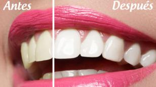Pasta dental casera para blanquear los dientes
