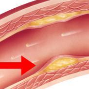Avena para bajar el colesterol malo