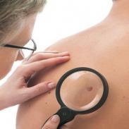 Liga Contra el Cáncer inicia campaña de despistajes de cáncer de piel en Pueblo Libre, Lima y Surquillo