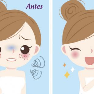 Mascarilla de leche, miel y palillo para combatir el acné