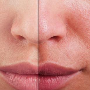 Secreto japonés para eliminar las manchas del rostro en un mes