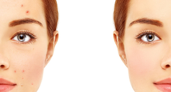 Tips para evitar la aparición de acné en el rostro