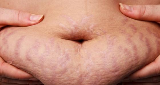 Remedio casero para atenuar las estrías del embarazo