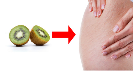 Mascarilla de kiwi para eliminar las estrías