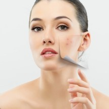 Malos hábitos que producen acné.