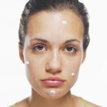 Mascarilla para atenuar las cicatrices del acné.