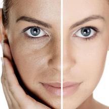 Mascarilla casera para rejuvenecer la piel del rostro.