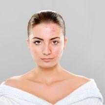 Tip casero para evitar y combatir la aparición de acné.