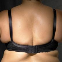 4 tips para eliminar los rollitos de la espalda